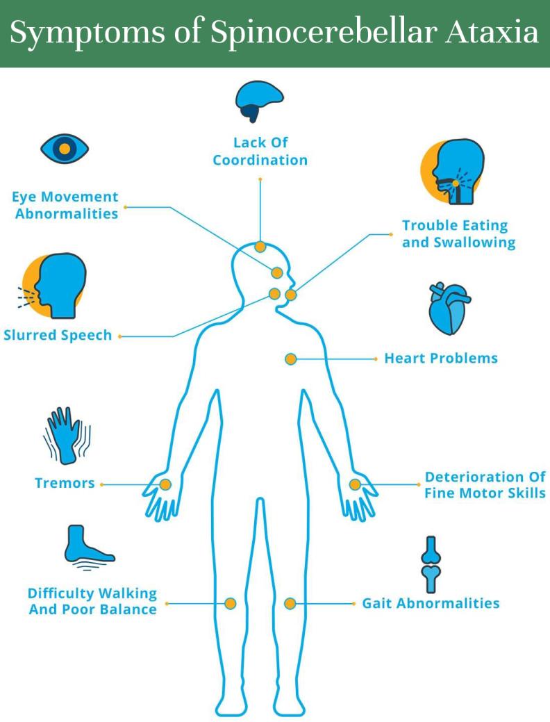 Spinocerebellar Ataxia Symptoms - graphic